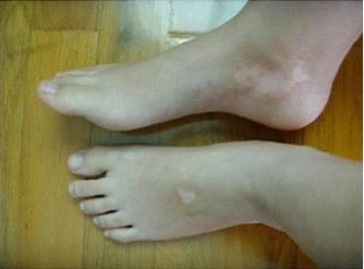脚部白斑是白癜风吗